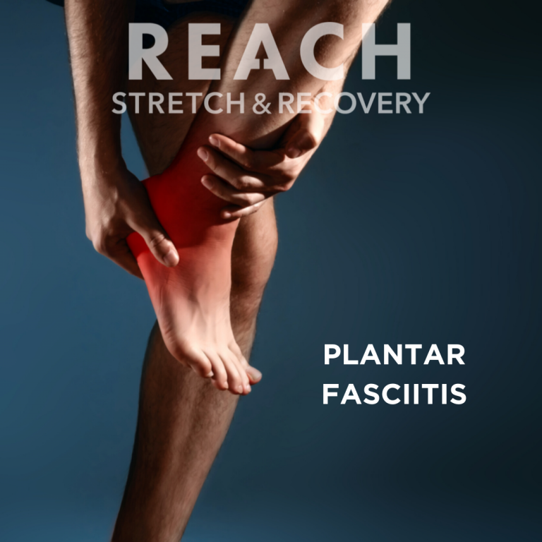 Got heel pain? You could have plantar fasciitis. REACH STRETCH & RECOVERY